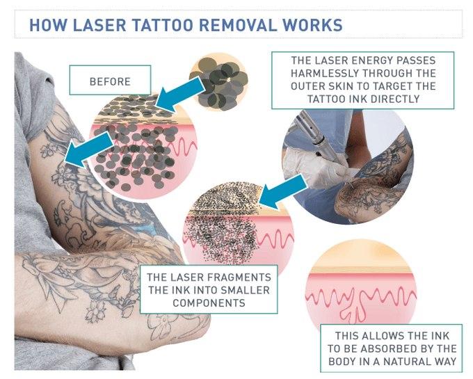 skematisk oversigt over en tatoverings placering i huden